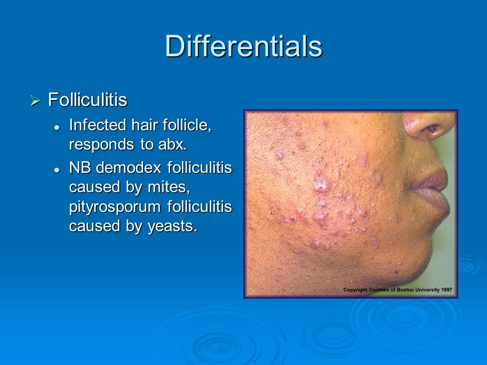 Differentials Folliculitis Infected hair follicle, responds to abx.