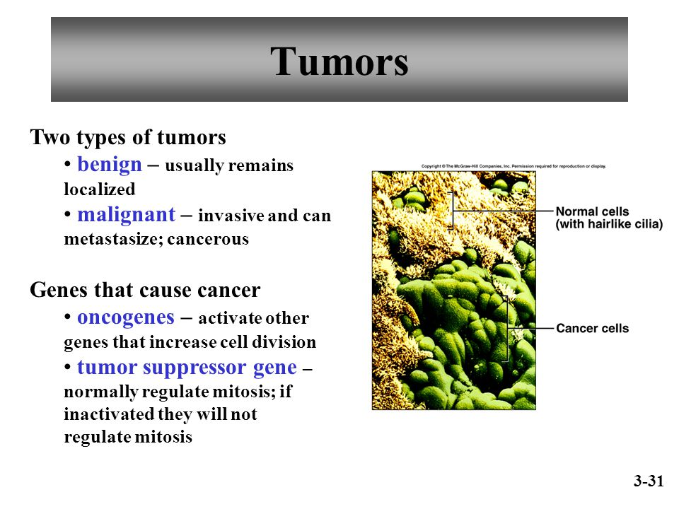 Tumors Two types of tumors benign – usually remains localized