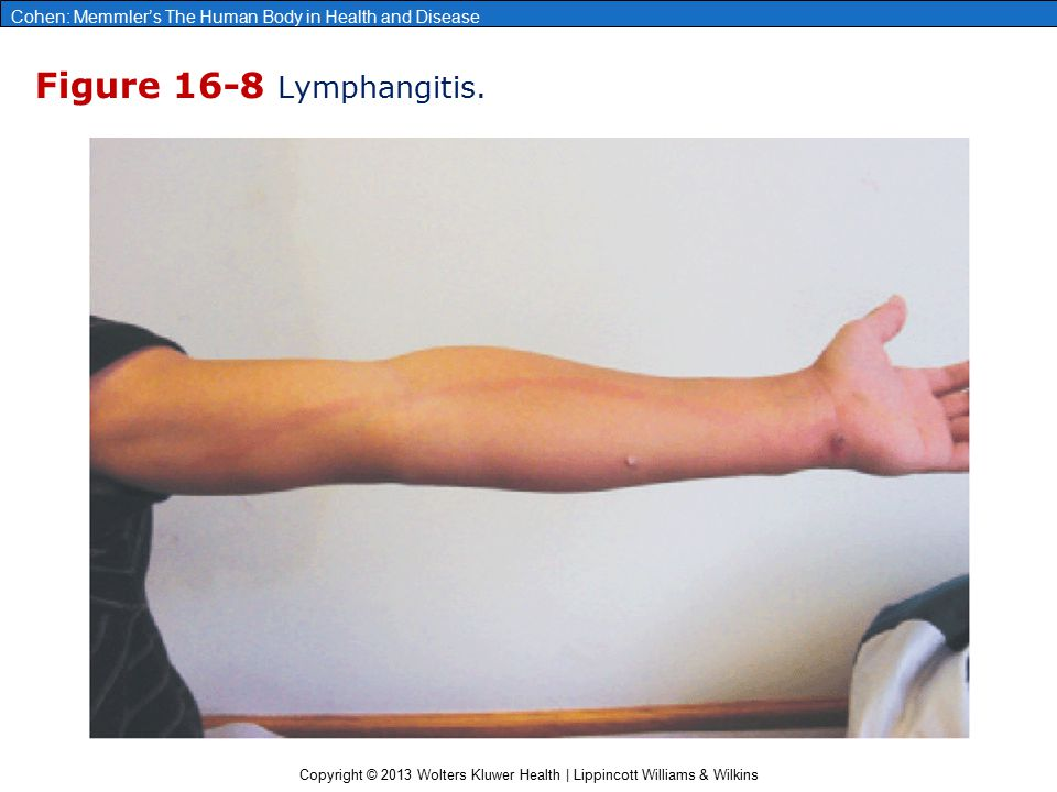 Figure 16-8 Lymphangitis. 38