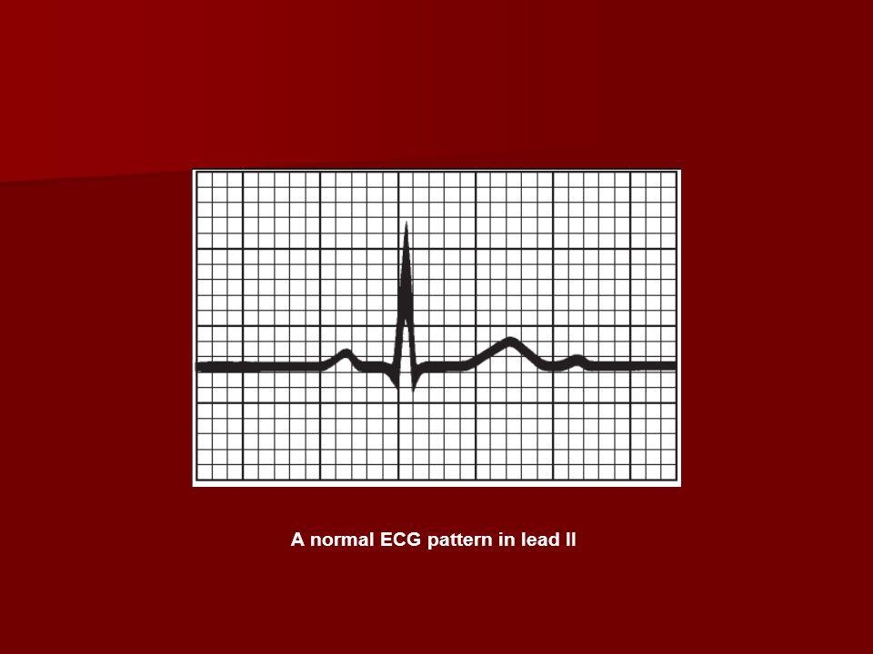 A normal ECG pattern in lead II