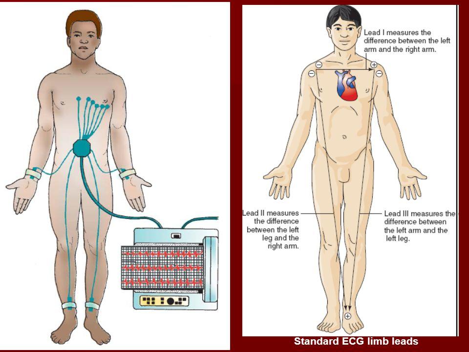 Standard ECG limb leads