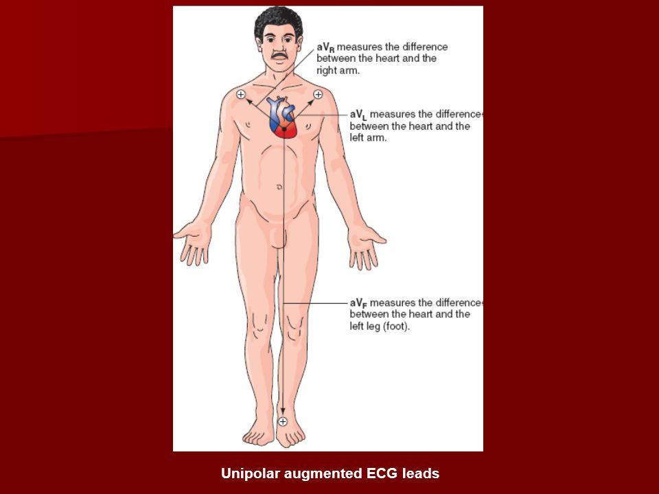 Unipolar augmented ECG leads