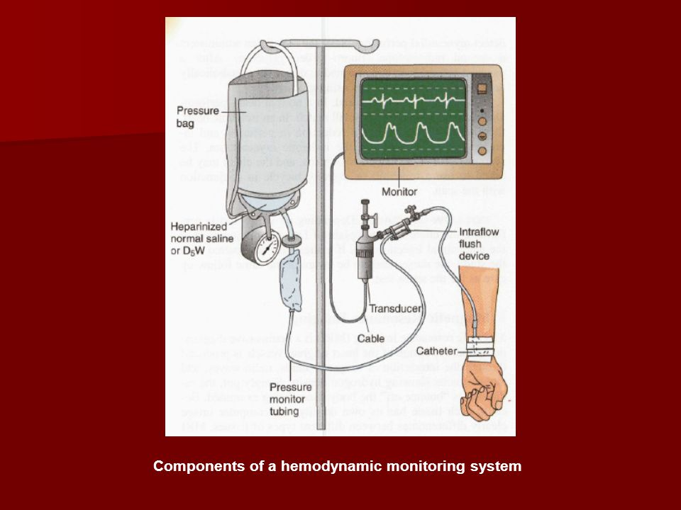 Components of a hemodynamic monitoring system