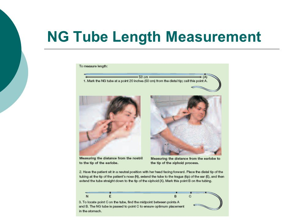 NG Tube Length Measurement