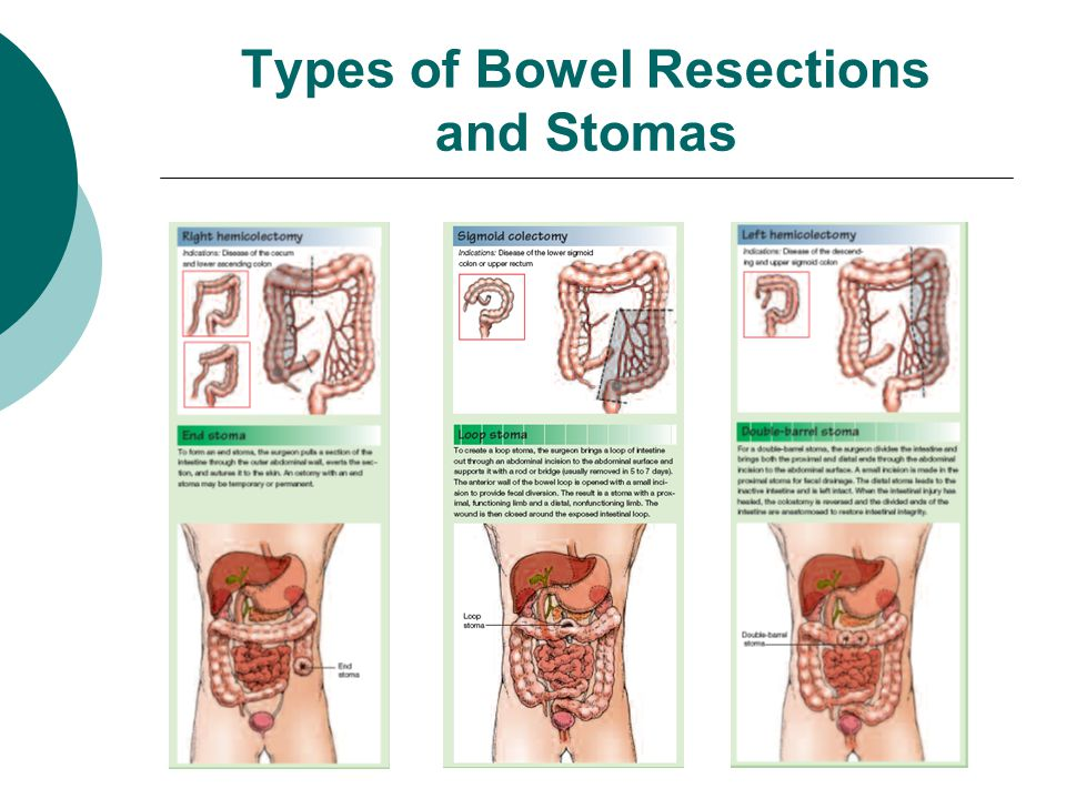 Types of Bowel Resections and Stomas