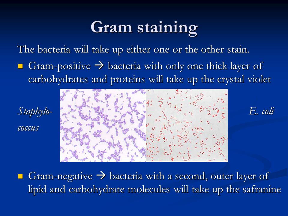 Gram staining The bacteria will take up either one or the other stain.