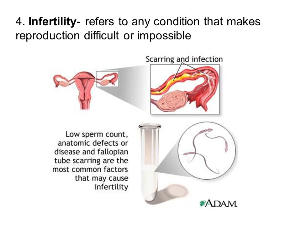 4. Infertility- refers to any condition that makes reproduction difficult or impossible