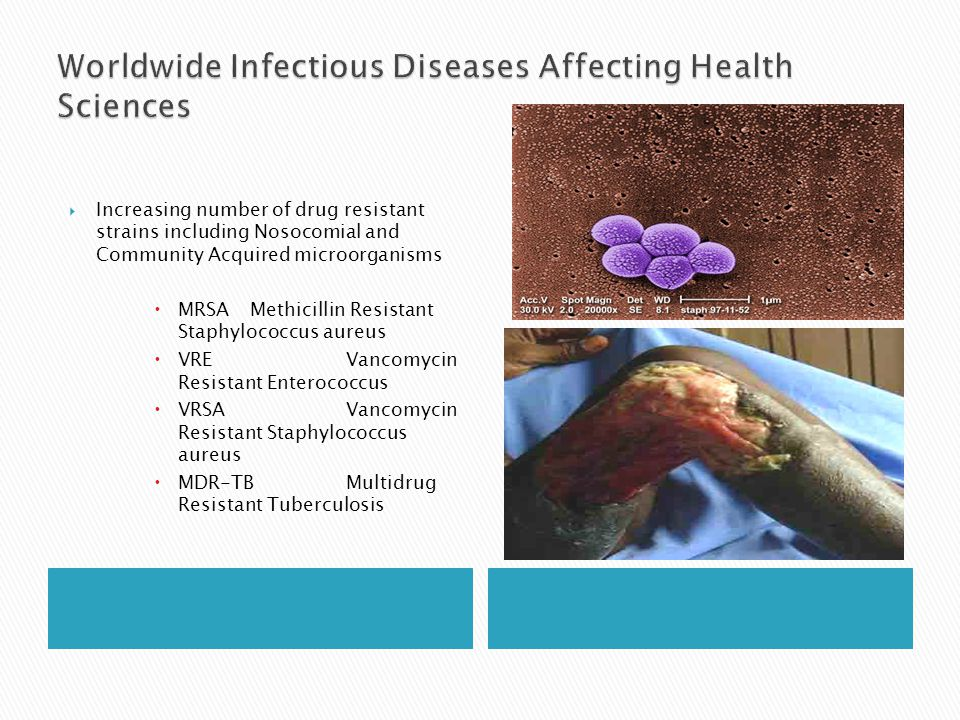 Worldwide Infectious Diseases Affecting Health Sciences