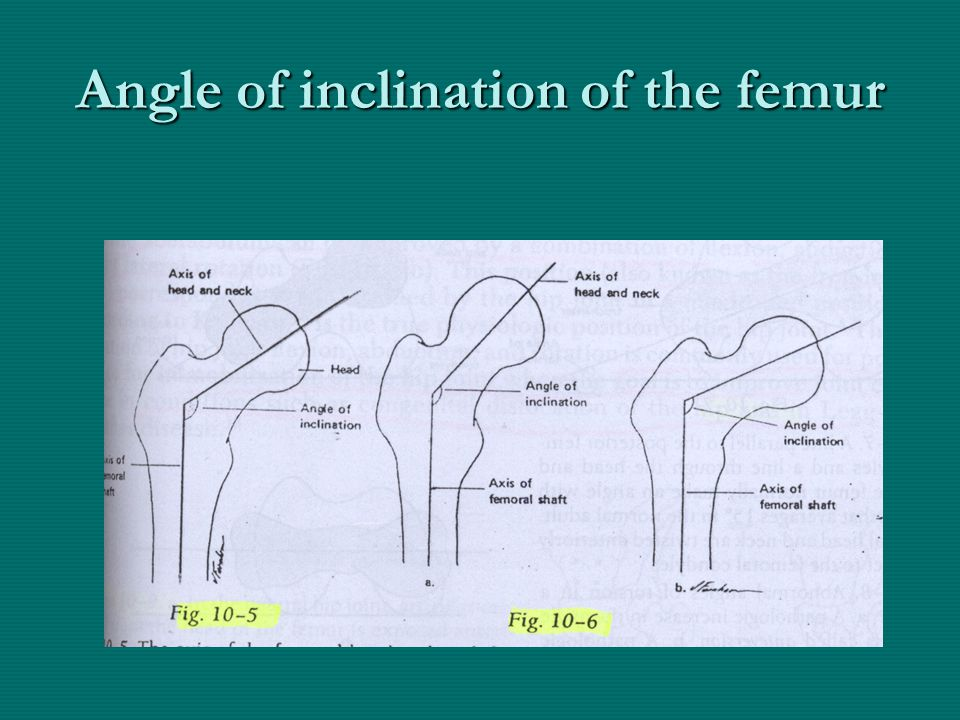 Angle of inclination of the femur