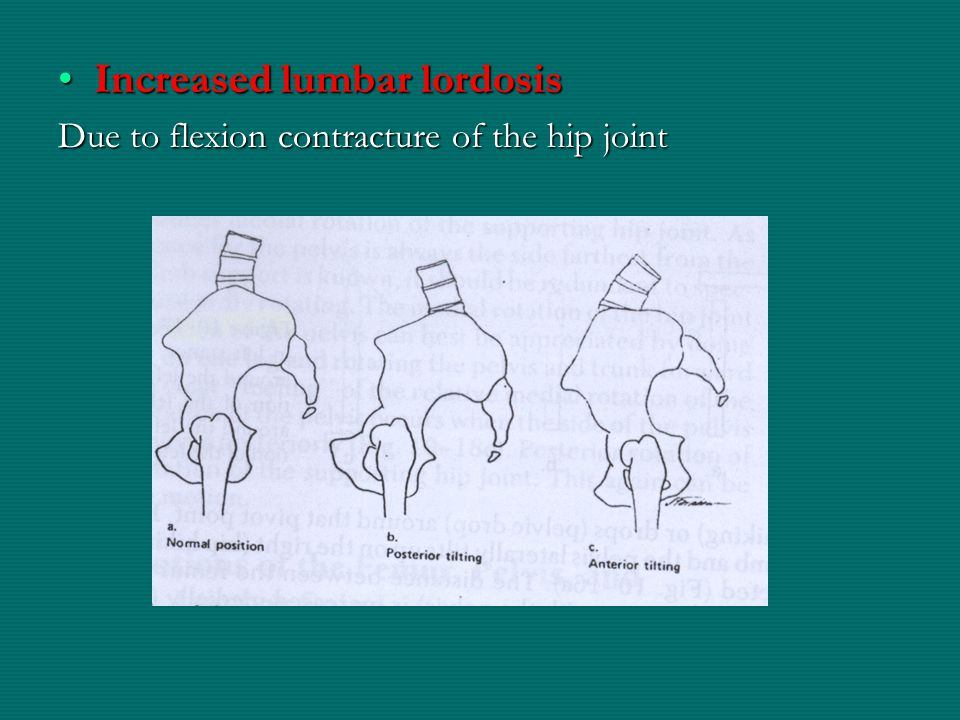 Increased lumbar lordosis