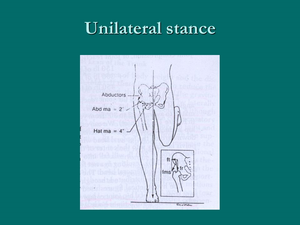 Unilateral stance