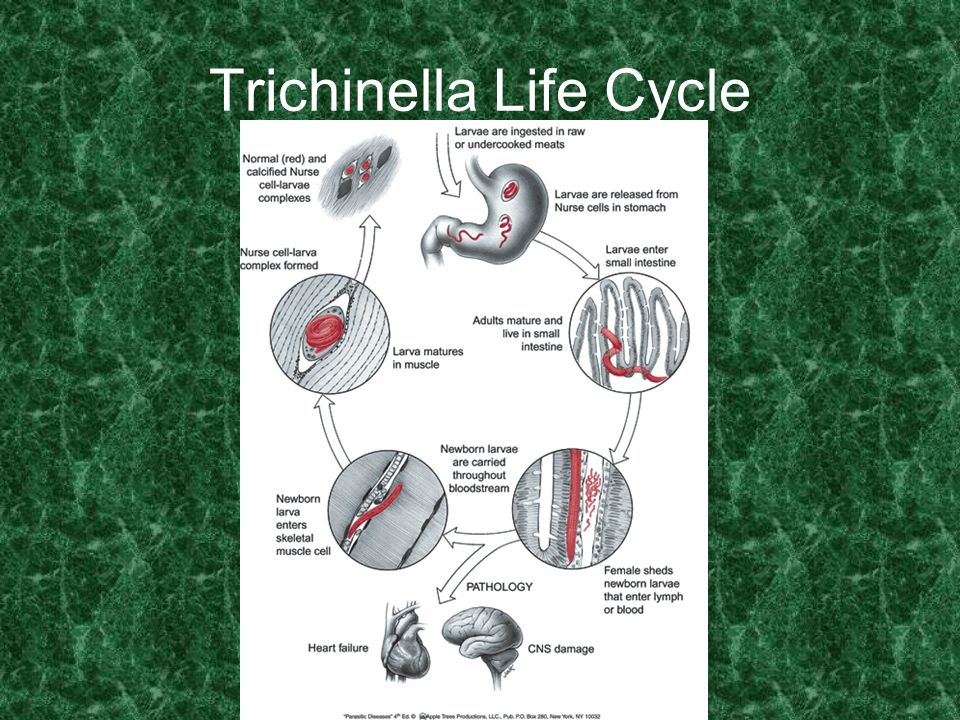 Trichinella Life Cycle