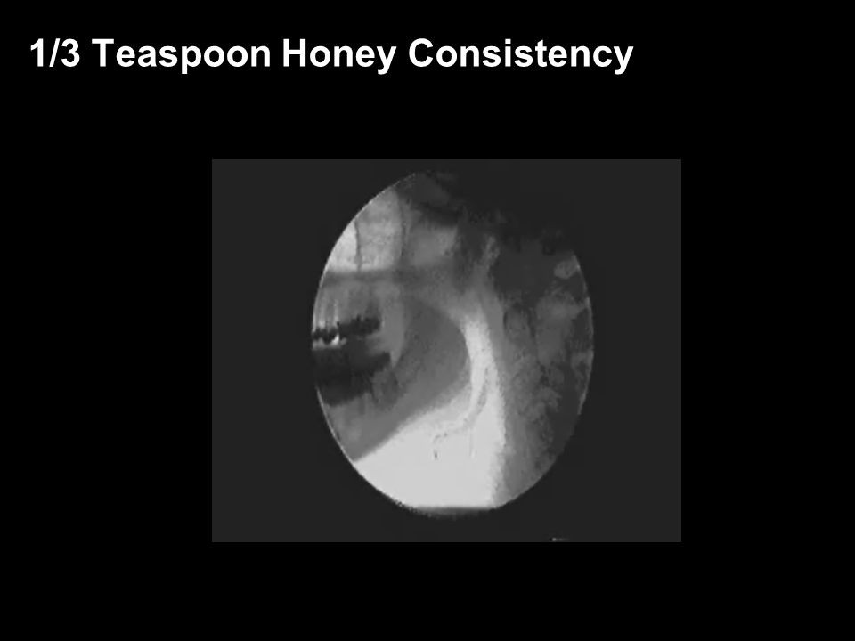 1/3 Teaspoon Honey Consistency