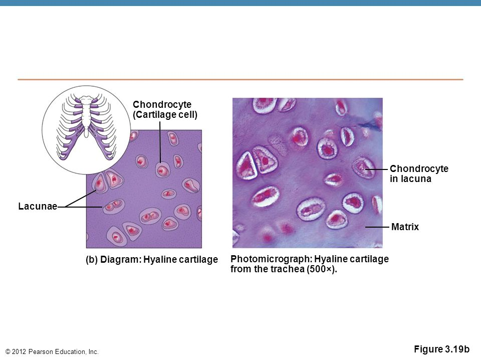 Chondrocyte (Cartilage cell) Chondrocyte. in lacuna. Lacunae. Matrix. (b) Diagram: Hyaline cartilage.