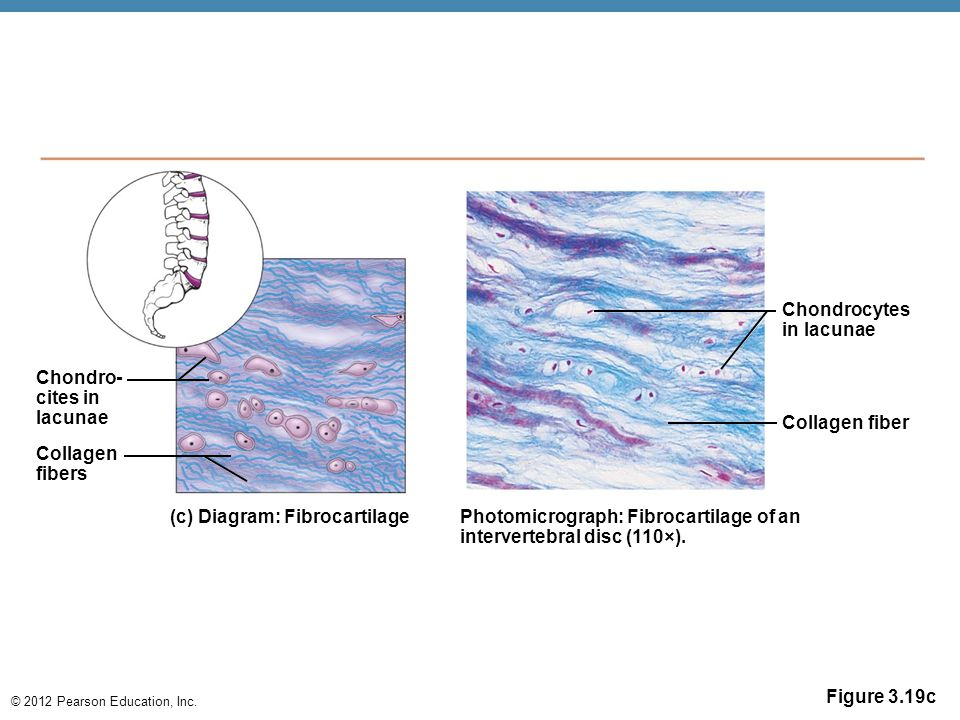 Chondrocytes in lacunae. Chondro- cites in. lacunae. Collagen fiber. Collagen. fibers. (c) Diagram: Fibrocartilage.