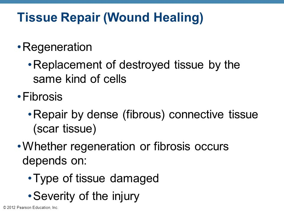 Tissue Repair (Wound Healing)