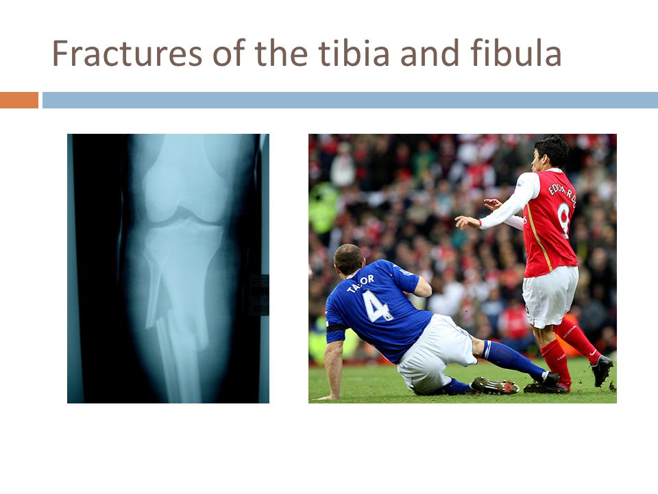 Fractures of the tibia and fibula