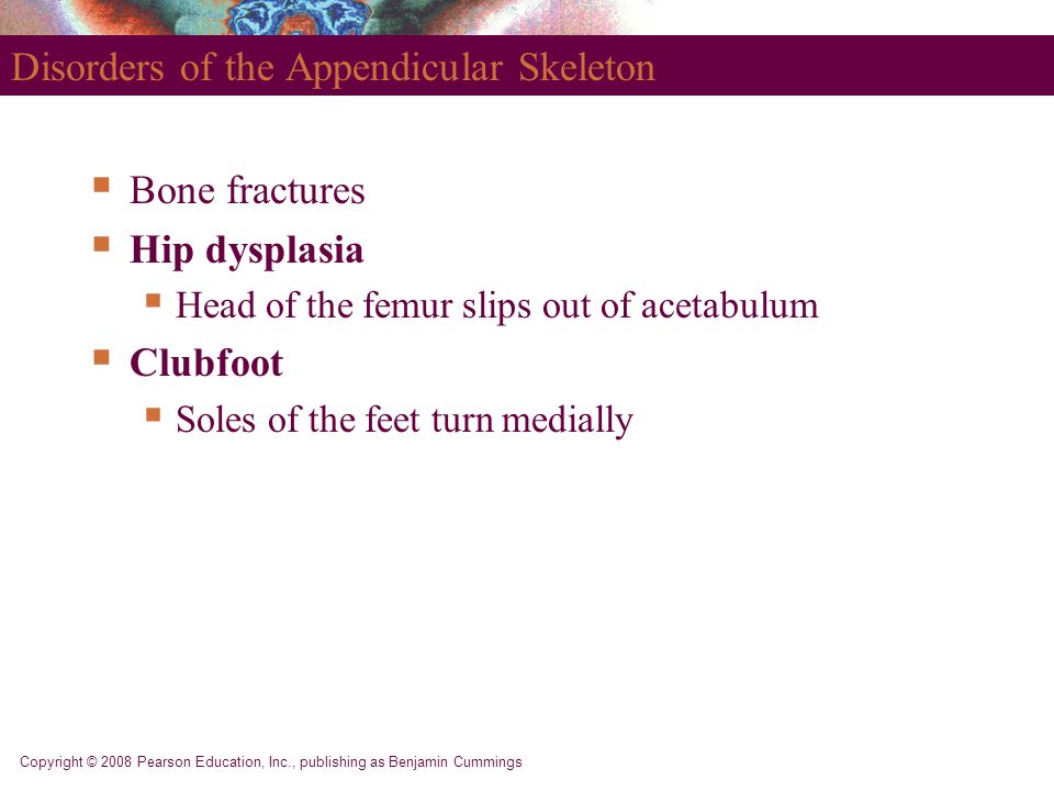 Disorders of the Appendicular Skeleton