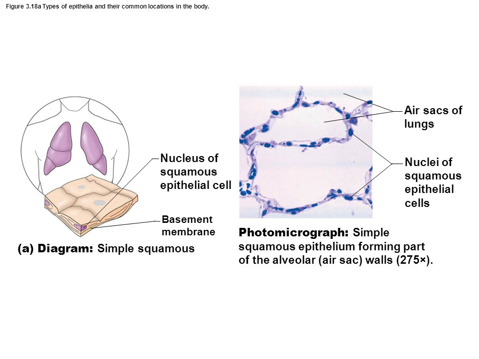 Nucleus of squamous epithelial cell