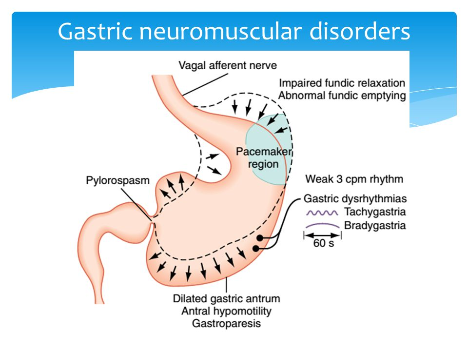 Gastric neuromuscular disorders