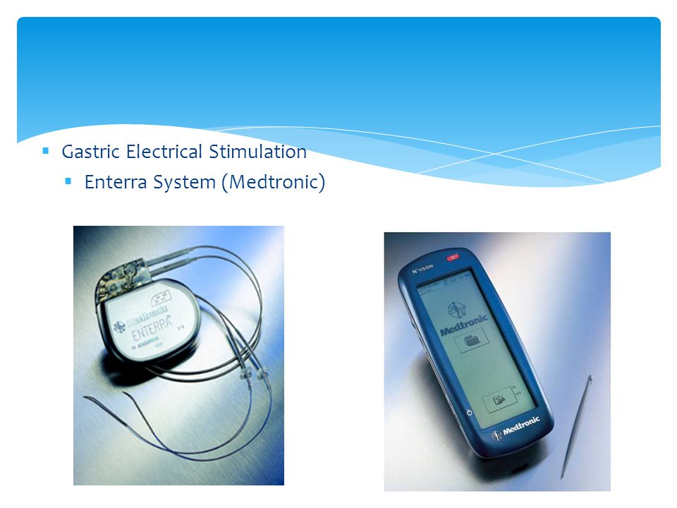 Gastric Electrical Stimulation