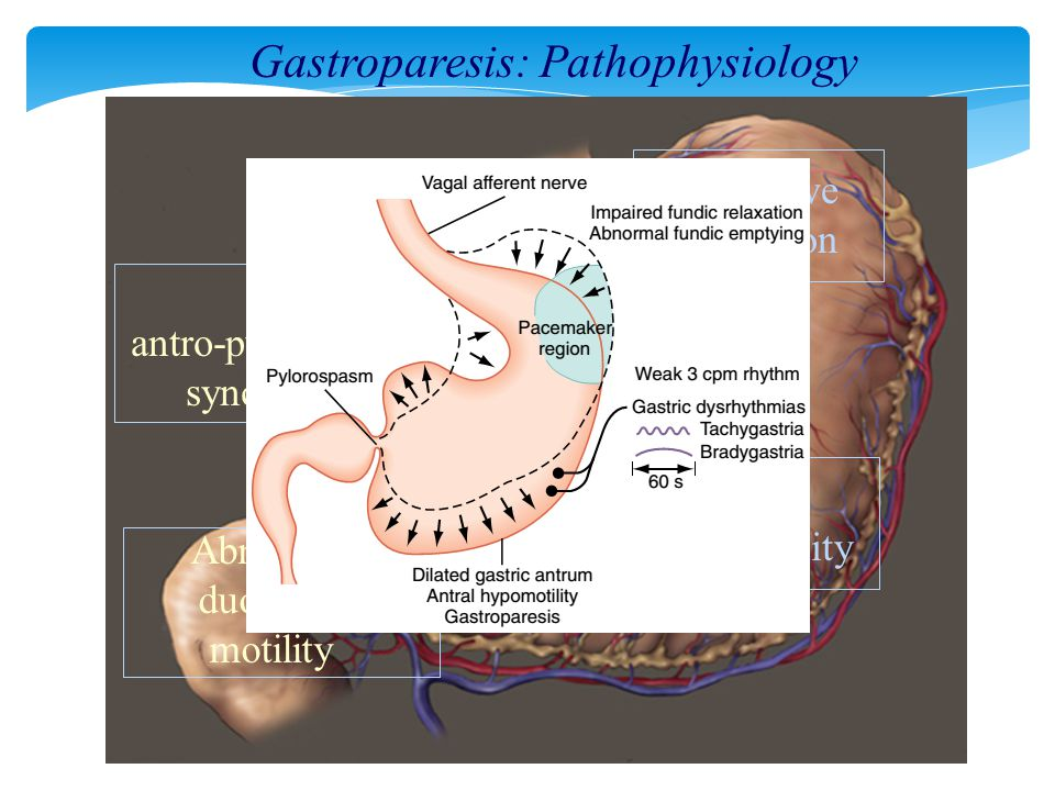Gastroparesis: Pathophysiology