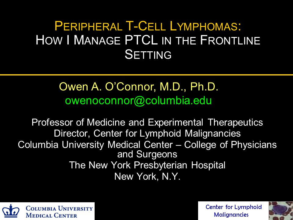 Peripheral T-Cell Lymphomas: How I Manage PTCL in the Frontline Setting