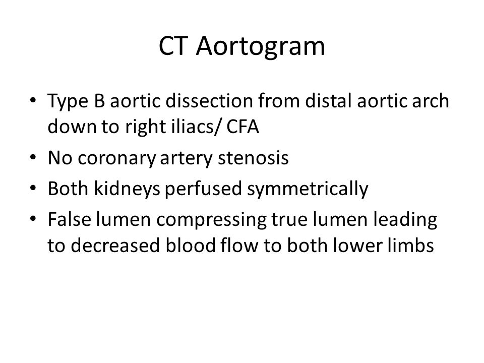 CT Aortogram Type B aortic dissection from distal aortic arch down to right iliacs/ CFA. No coronary artery stenosis.