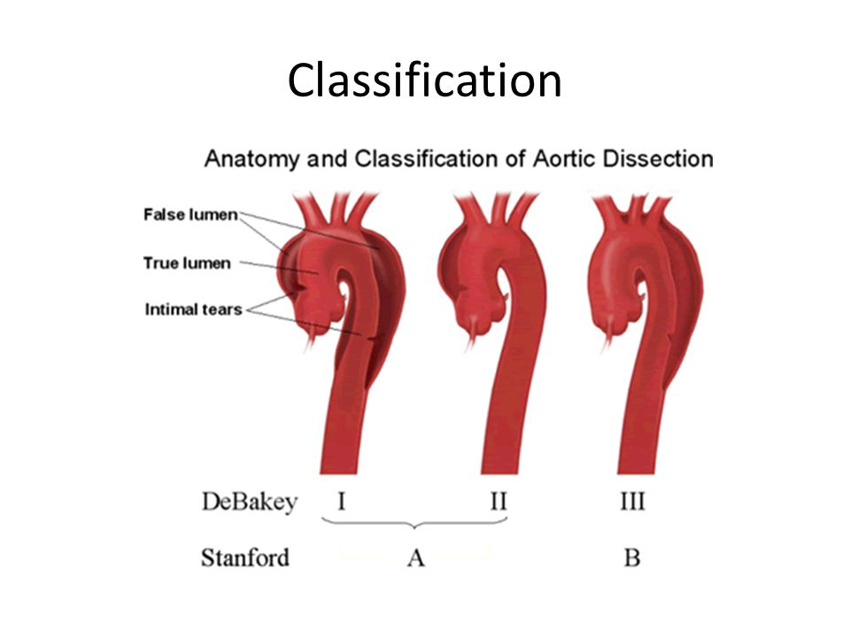 Classification Anatomic distribution Acuity of dissection =