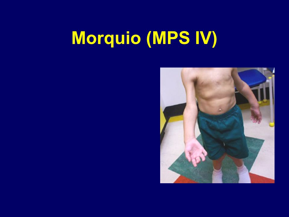 Morquio (MPS IV)