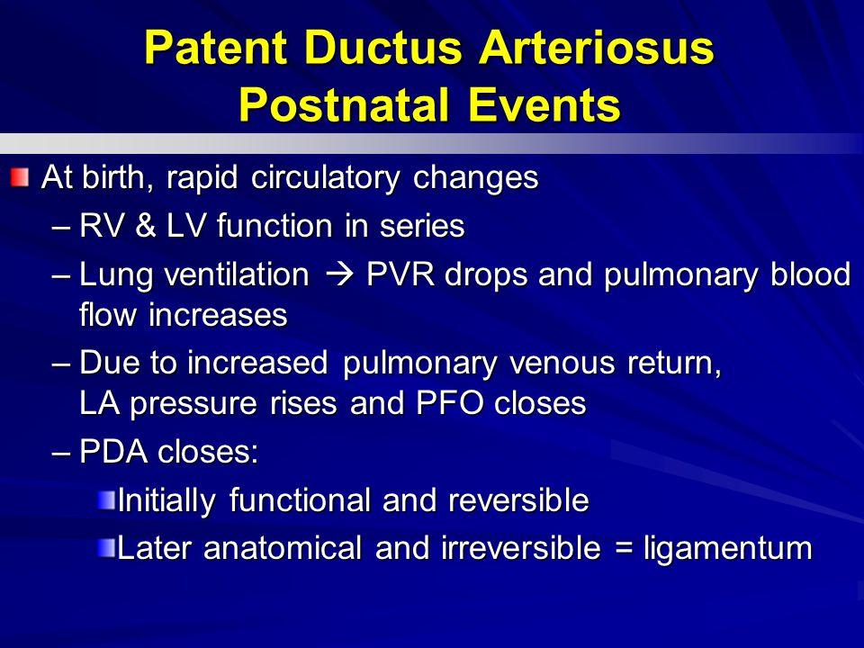 Patent Ductus Arteriosus Postnatal Events