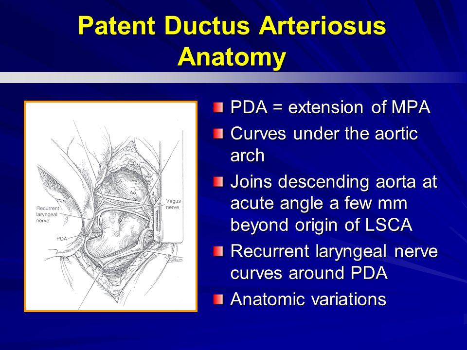 Patent Ductus Arteriosus Anatomy