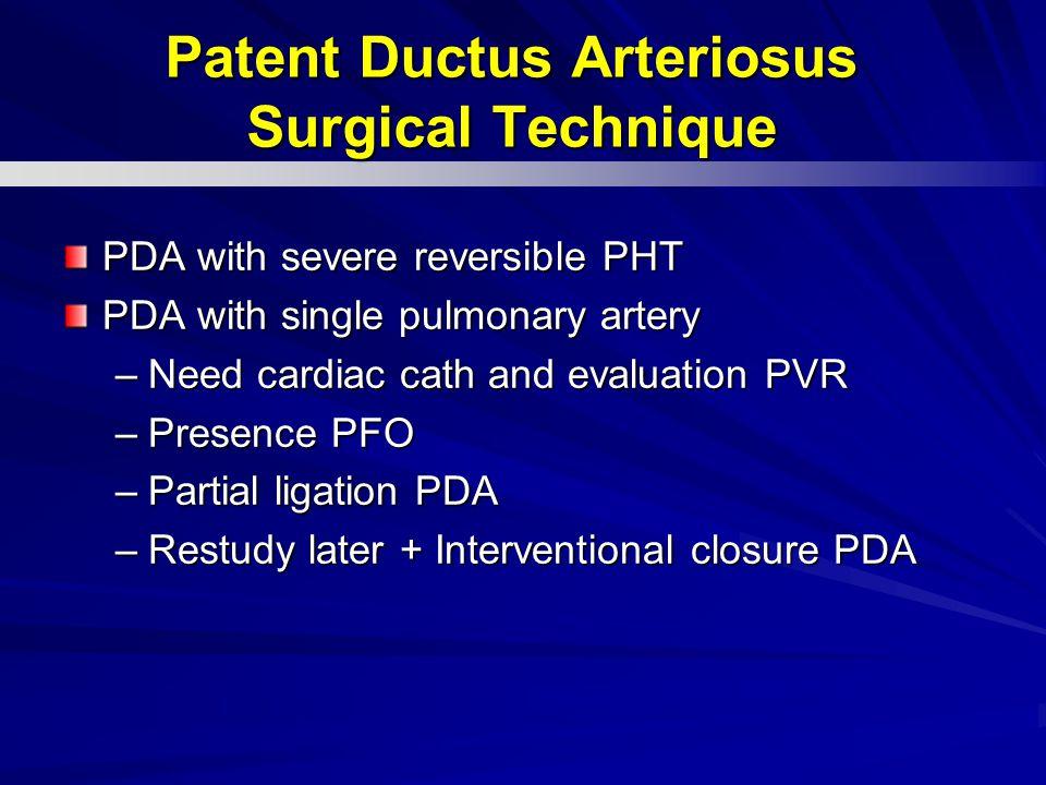 Patent Ductus Arteriosus Surgical Technique