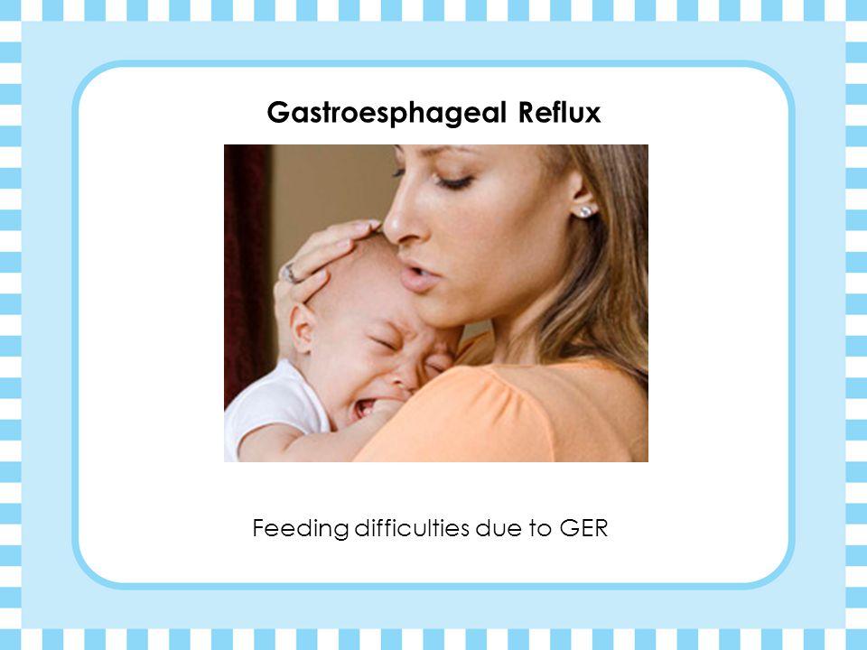 Gastroesphageal Reflux