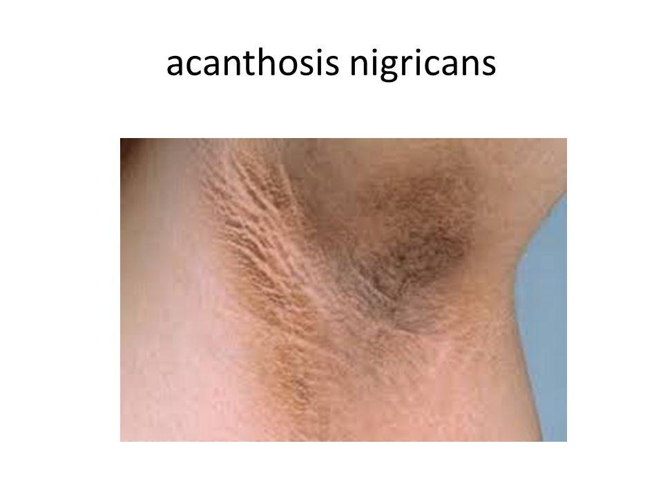acanthosis nigricans