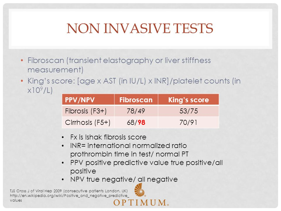 Non Invasive tests Fibroscan (transient elastography or liver stiffness measurement)