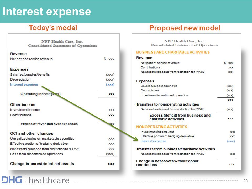 Interest expense Today's model Proposed new model