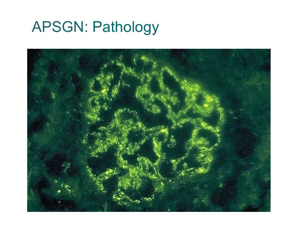 APSGN: Pathology