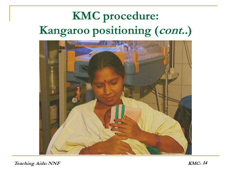 KMC procedure: Kangaroo positioning (cont..)