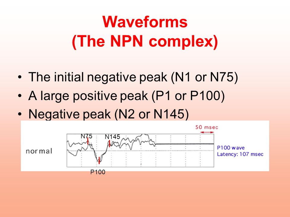 Waveforms (The NPN complex)
