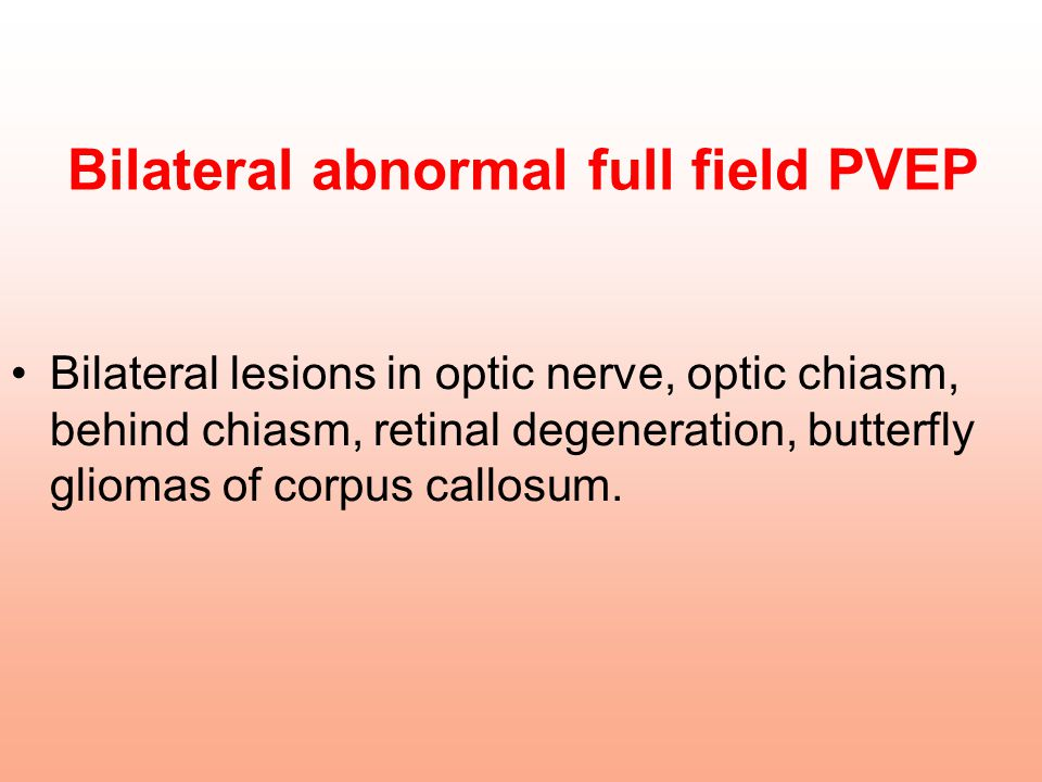 Bilateral abnormal full field PVEP