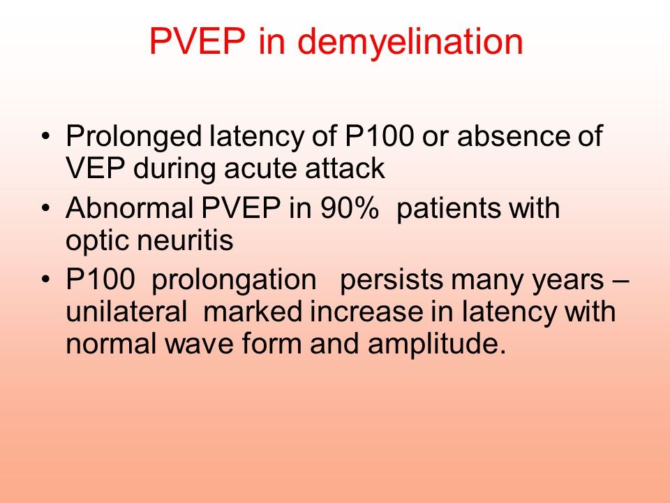PVEP in demyelination Prolonged latency of P100 or absence of VEP during acute attack. Abnormal PVEP in 90% patients with optic neuritis.