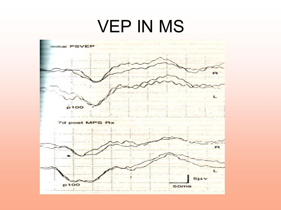 VEP IN MS