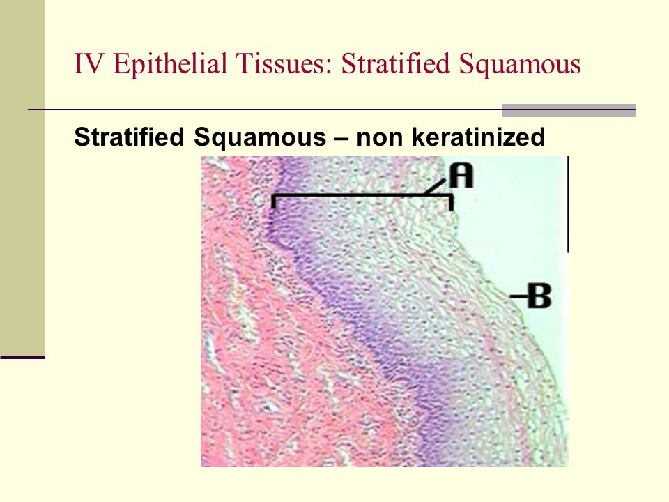 IV Epithelial Tissues: Stratified Squamous