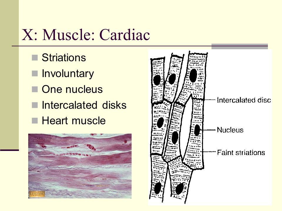 X: Muscle: Cardiac Striations Involuntary One nucleus