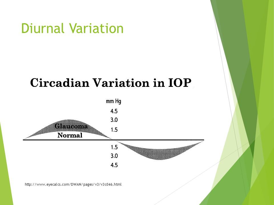 Diurnal Variation http://www.eyecalcs.com/DWAN/pages/v3/v3c046.html