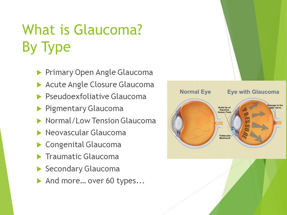 What is Glaucoma By Type