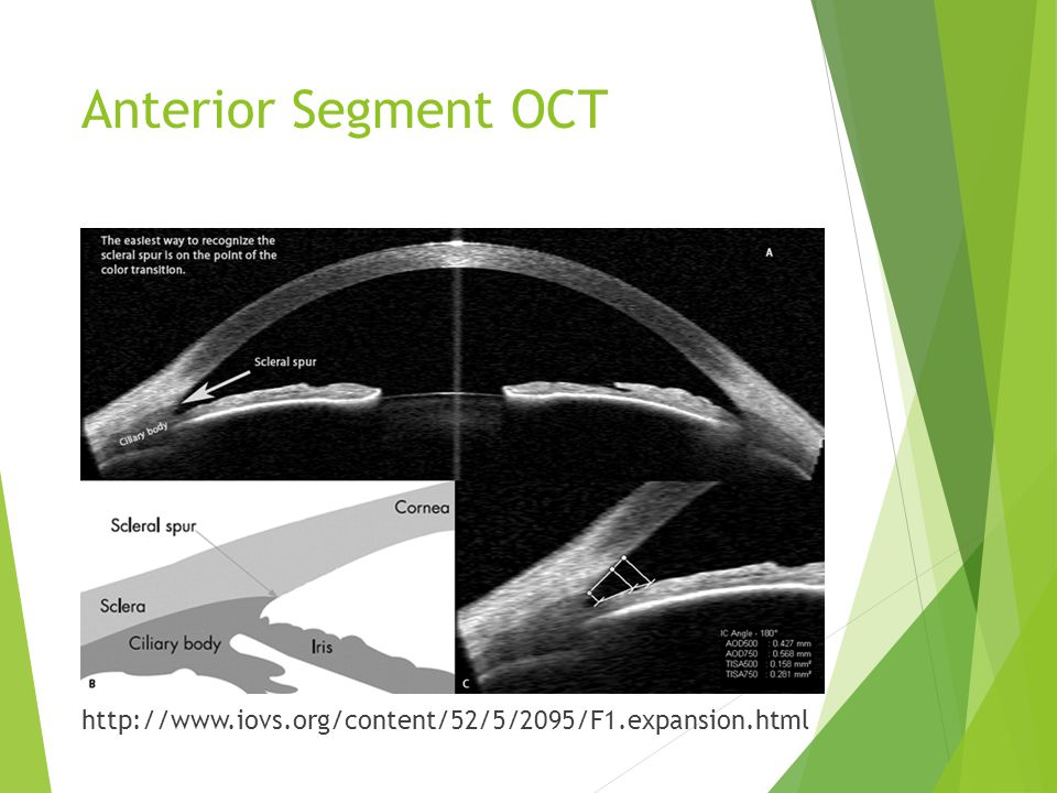 Anterior Segment OCT http://www.iovs.org/content/52/5/2095/F1.expansion.html