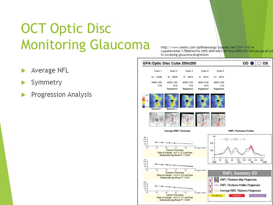 OCT Optic Disc Monitoring Glaucoma