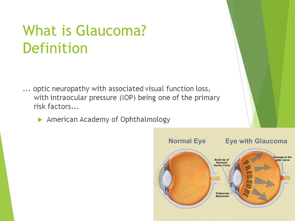 What is Glaucoma Definition